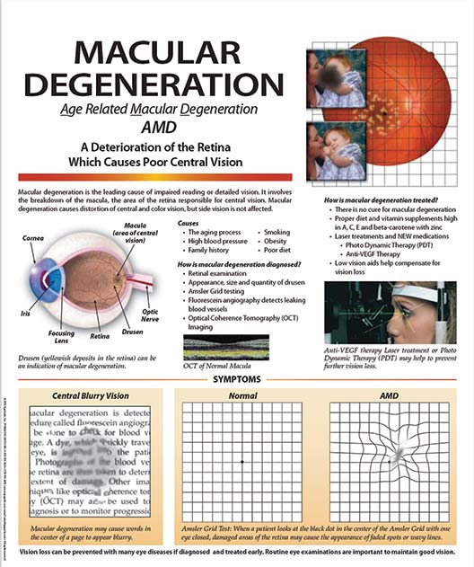 Patient Education Poster, Macular Degeneration