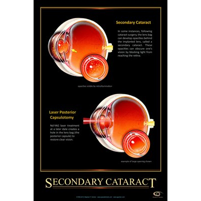 Patient Education Poster, Secondary Cataract