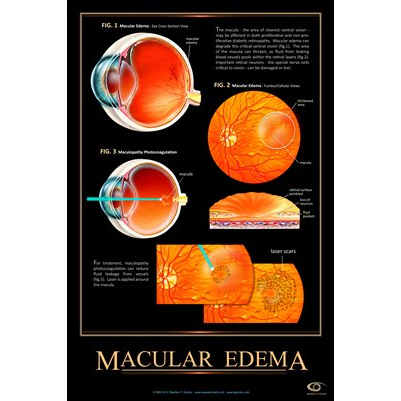 Patient Education Poster, Macular Edema