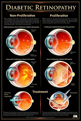 Patient Education Poster, Diabetic Retinopathy